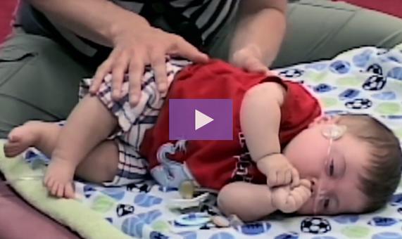 congenital brain malformation